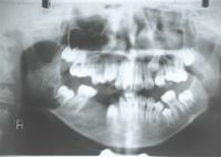 含歯性のう胞