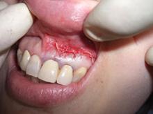 歯根のう胞