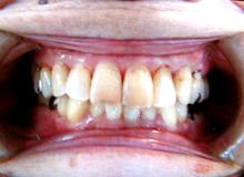 72歳でも29本歯があります。