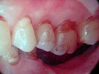 歯周病の難症例